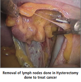 Removal of Lymph Nodes